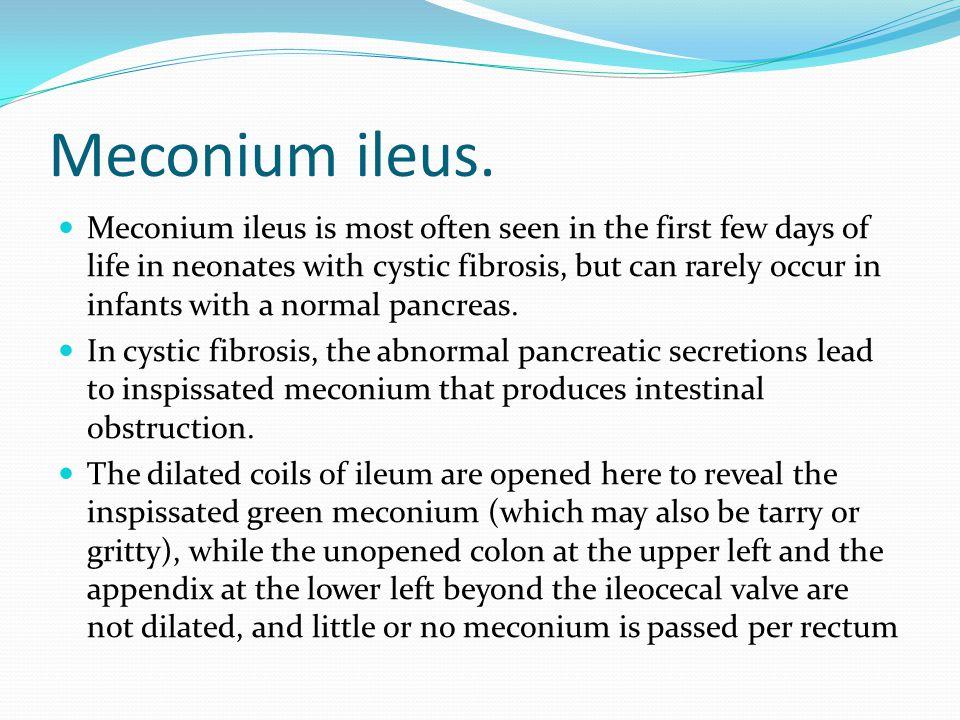 Meconium ileus.