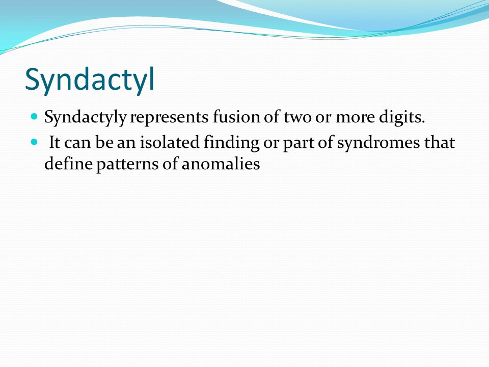 Syndactyl Syndactyly represents fusion of two or more digits.