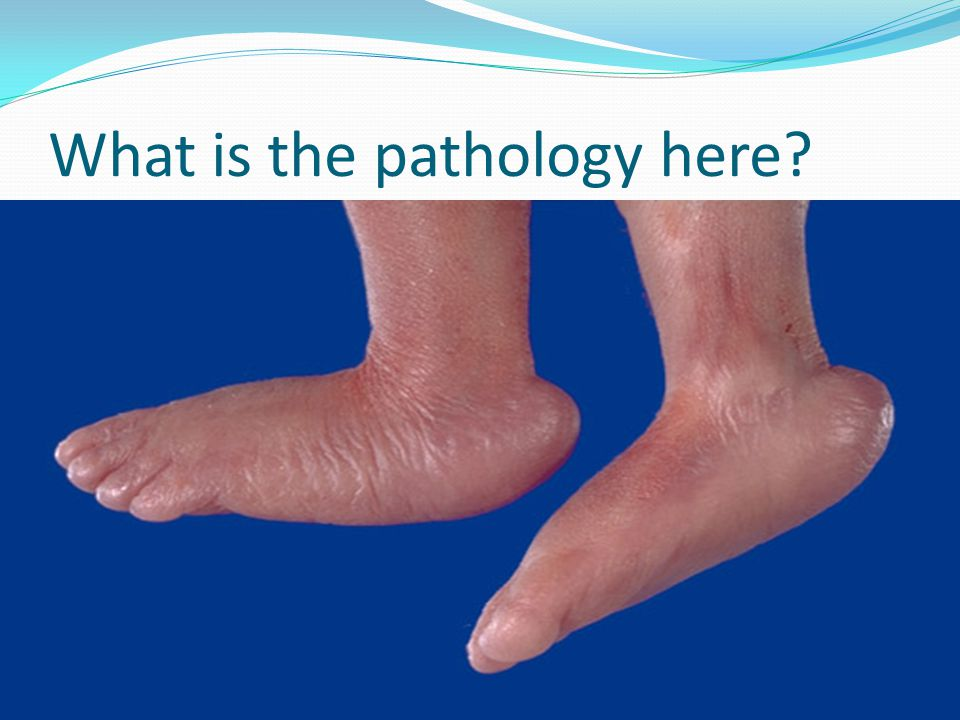 What is the pathology here?