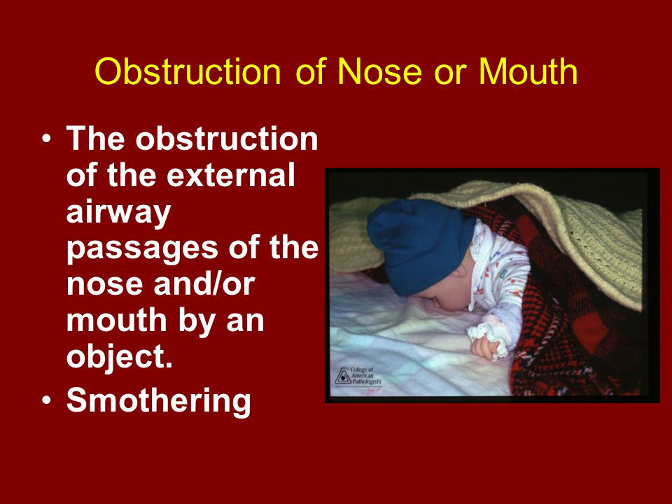 Obstruction of Nose or Mouth The obstruction of the external airway passages of the nose and/or mouth by an object. Smothering