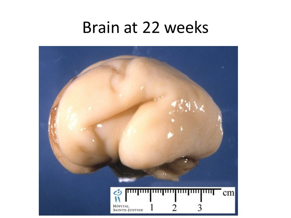 Brain at 22 weeks