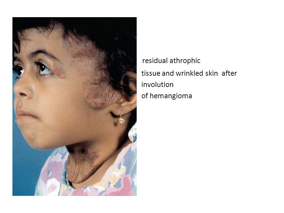 residual athrophic tissue and wrinkled skin after involution of hemangioma