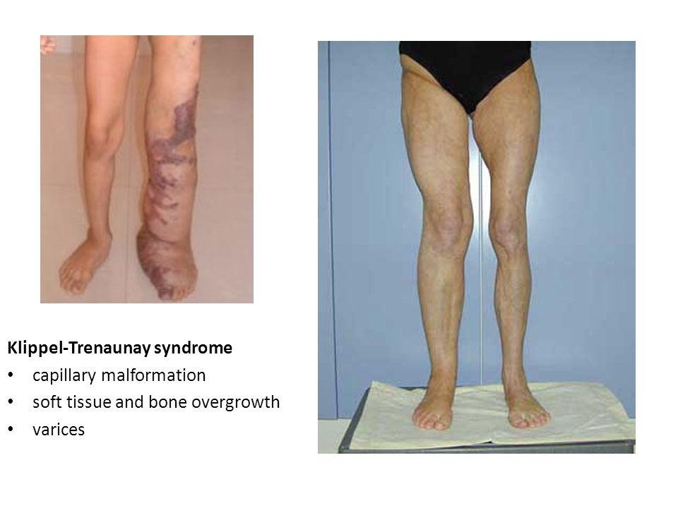 Klippel-Trenaunay syndrome capillary malformation soft tissue and bone overgrowth varices