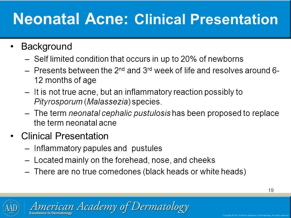 Neonatal Acne: Clinical Presentation Background –Self limited condition that occurs in up to 20% of newborns –Presents between the 2 nd and 3 rd week of life and resolves around 6- 12 months of age –It is not true acne, but an inflammatory reaction possibly to Pityrosporum (Malassezia) species.
