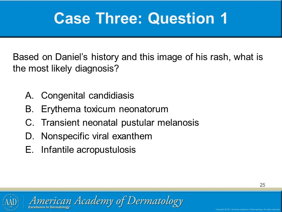 Case Three: Question 1 Based on Daniel's history and this image of his rash, what is the most likely diagnosis.