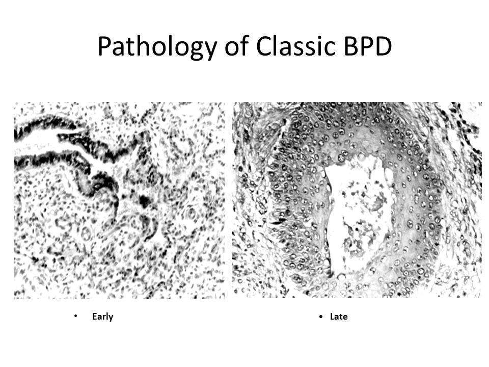 Pathology of Classic BPD Early Late