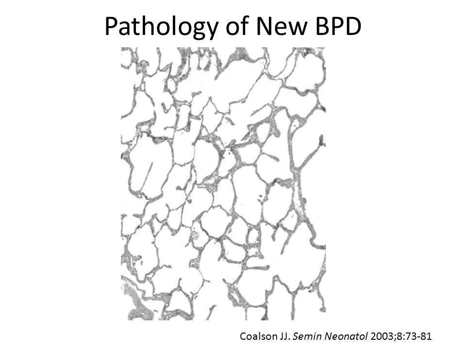Pathology of New BPD Coalson JJ. Semin Neonatol 2003;8:73-81