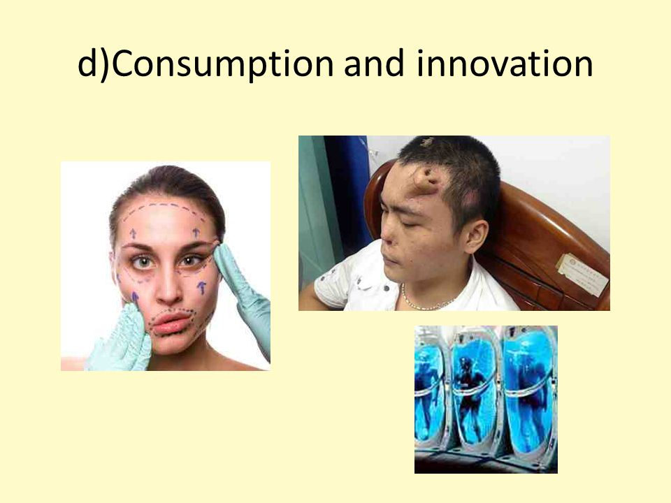 d)Consumption and innovation