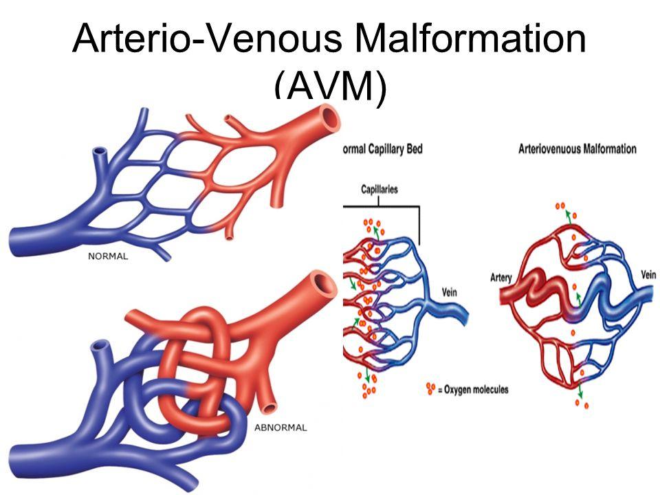Arterio-Venous Malformation (AVM)