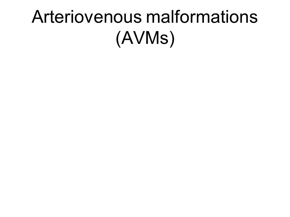Arteriovenous malformations (AVMs)