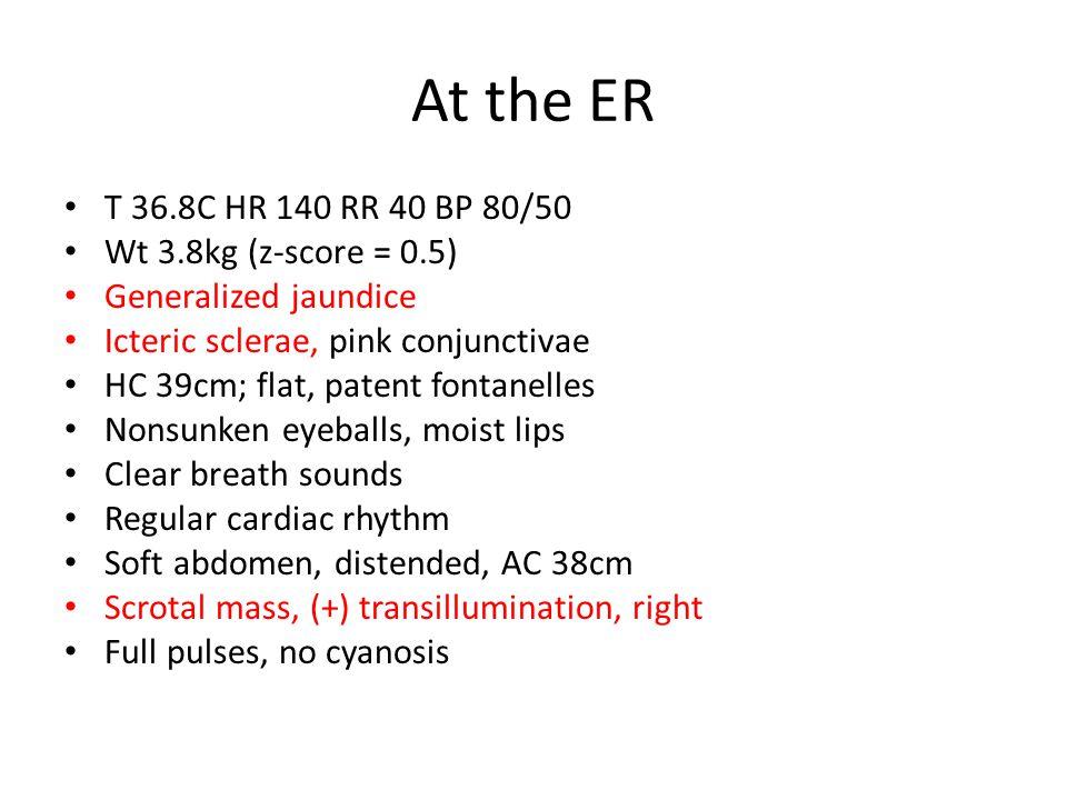 At the ER T 36.8C HR 140 RR 40 BP 80/50 Wt 3.8kg (z-score = 0.5) Generalized jaundice Icteric sclerae, pink conjunctivae HC 39cm; flat, patent fontanelles Nonsunken eyeballs, moist lips Clear breath sounds Regular cardiac rhythm Soft abdomen, distended, AC 38cm Scrotal mass, (+) transillumination, right Full pulses, no cyanosis