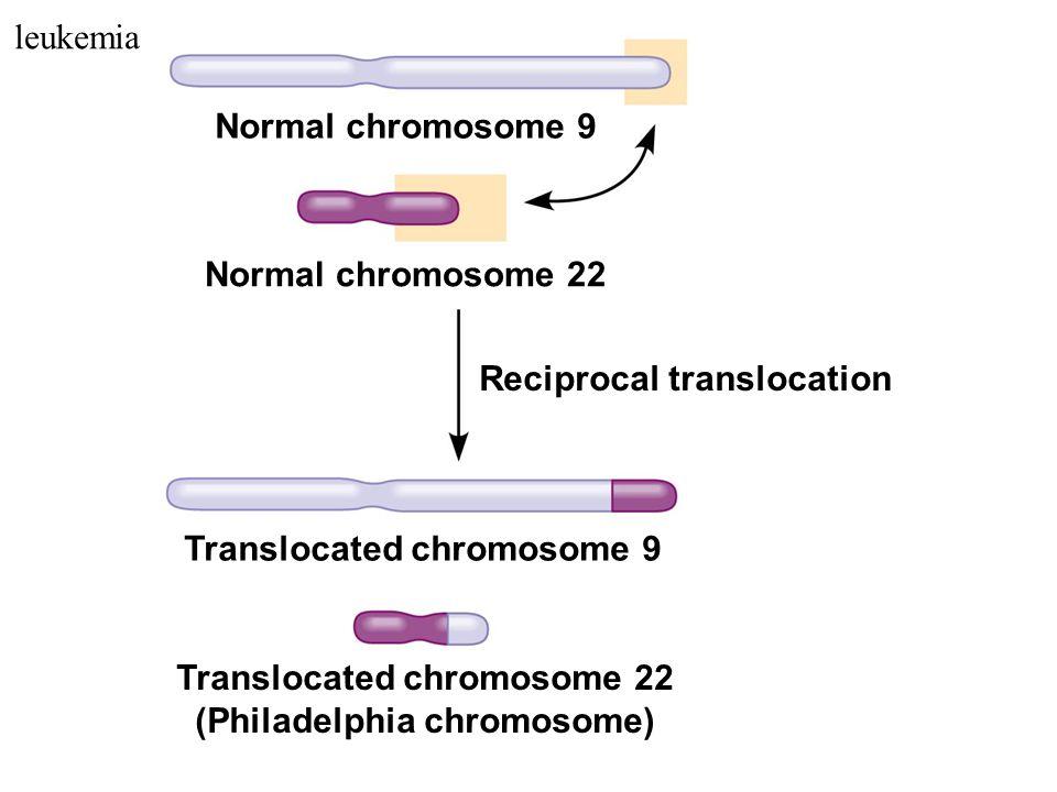 Normal chromosome 9 Normal chromosome 22 Reciprocal translocation Translocated chromosome 9 Translocated chromosome 22 (Philadelphia chromosome) leukemia