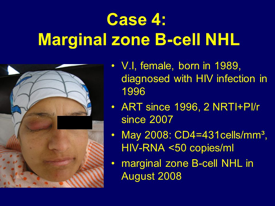 Case 4: Marginal zone B-cell NHL V.I, female, born in 1989, diagnosed with HIV infection in 1996 ART since 1996, 2 NRTI+PI/r since 2007 May 2008: CD4=
