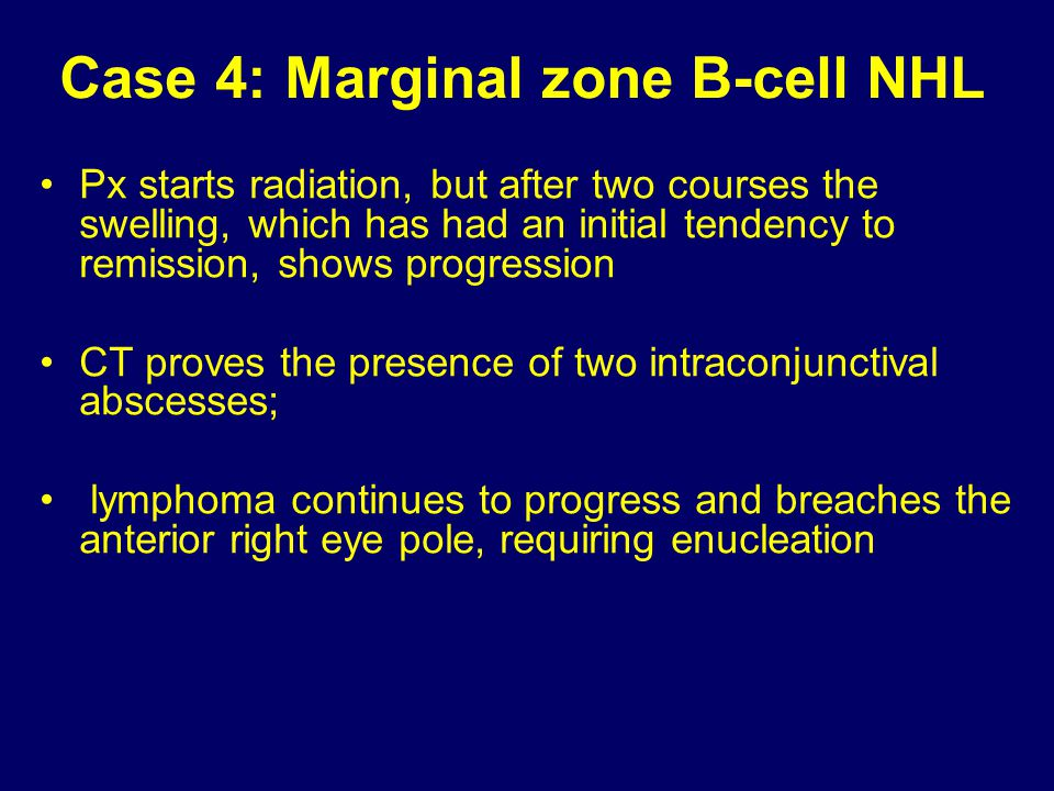 Case 4: Marginal zone B-cell NHL Px starts radiation, but after two courses the swelling, which has had an initial tendency to remission, shows progre