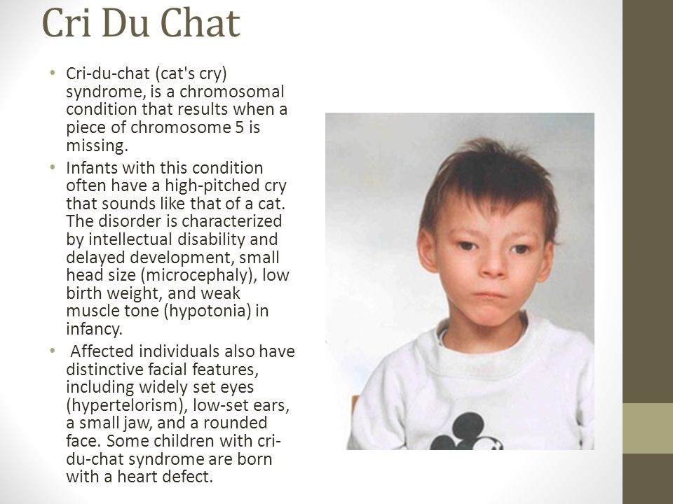 Cri Du Chat Cri-du-chat (cat's cry) syndrome, is a chromosomal condition that results when a piece of chromosome 5 is missing. Infants with this condi
