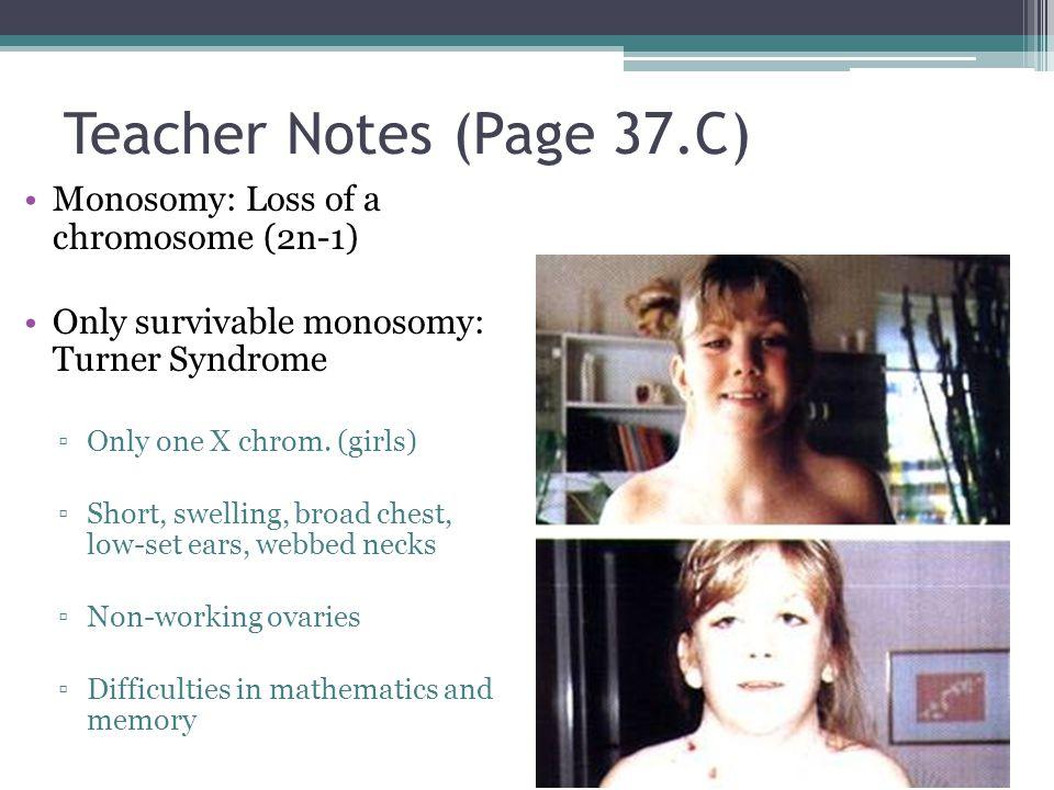 Teacher Notes (Page 37.C) Monosomy: Loss of a chromosome (2n-1) Only survivable monosomy: Turner Syndrome ▫Only one X chrom. (girls) ▫Short, swelling,