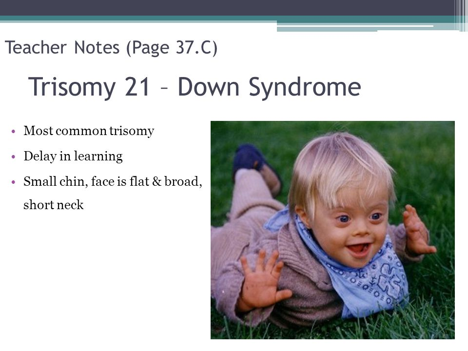 Trisomy 21 – Down Syndrome Most common trisomy Delay in learning Small chin, face is flat & broad, short neck Teacher Notes (Page 37.C)