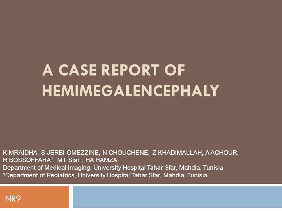 A CASE REPORT OF HEMIMEGALENCEPHALY K MRAIDHA, S JERBI OMEZZINE, N CHOUCHENE, Z KHADIMALLAH, A ACHOUR, R BOSSOFFARA 1, MT Sfar 1, HA HAMZA.