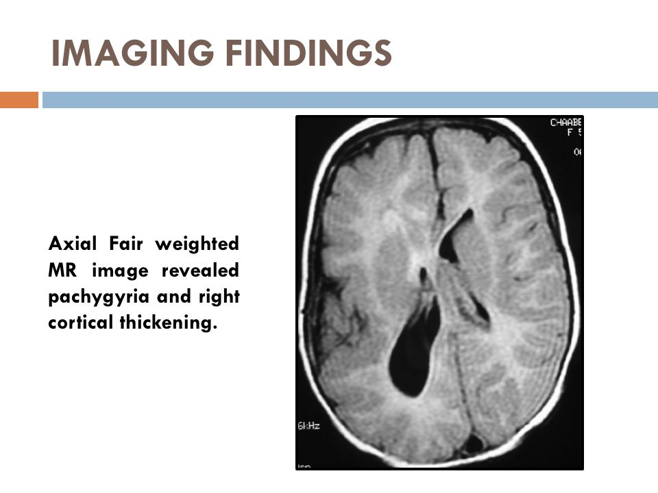 IMAGING FINDINGS Axial Fair weighted MR image revealed pachygyria and right cortical thickening.