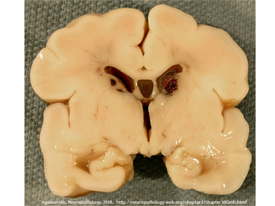 Agamanolis. Neuropathology. 2010. http://neuropathology-web.org/chapter3/chapter3dGmh.html