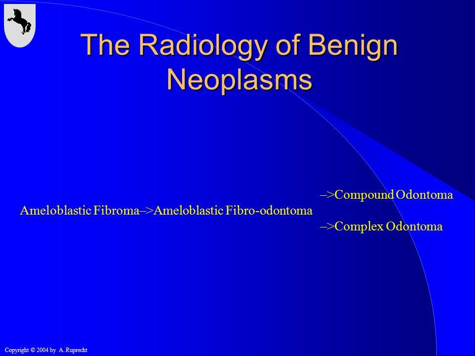 Copyright © 2004 by A. Ruprecht –>Compound Odontoma Ameloblastic Fibroma–>Ameloblastic Fibro-odontoma –>Complex Odontoma The Radiology of Benign Neopl