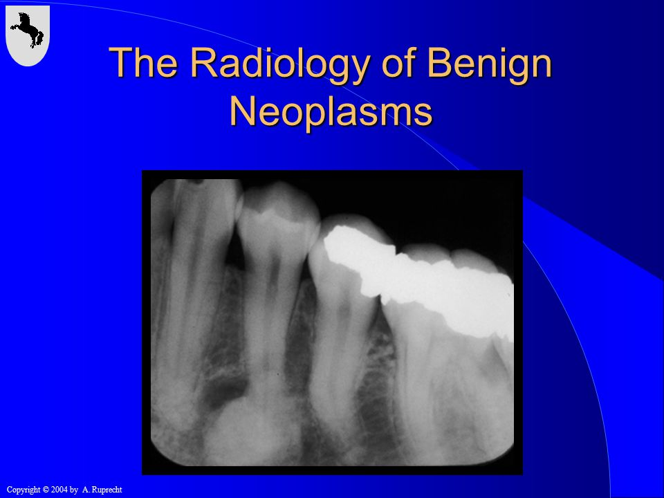 Copyright © 2004 by A. Ruprecht The Radiology of Benign Neoplasms
