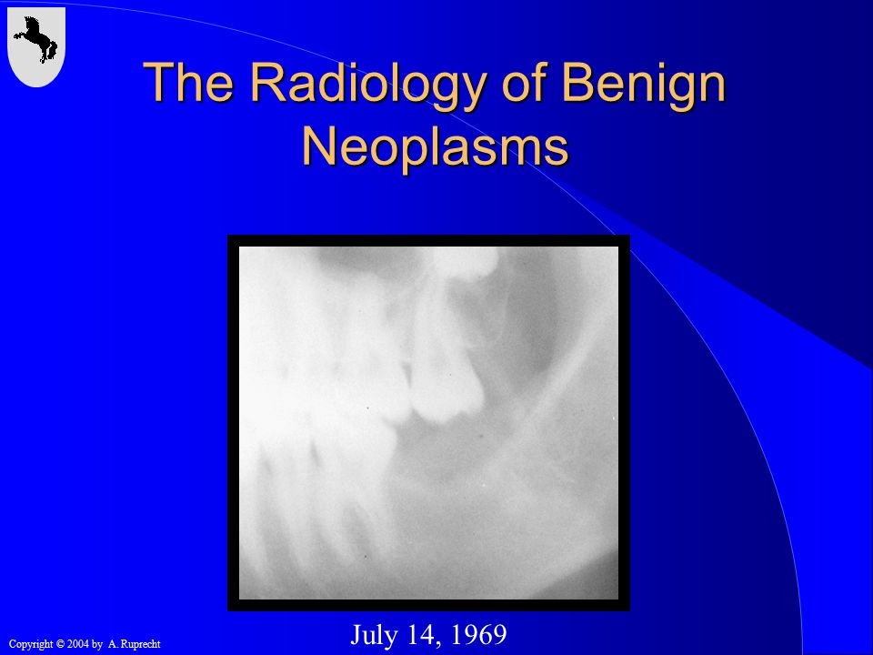 Copyright © 2004 by A. Ruprecht July 14, 1969 The Radiology of Benign Neoplasms