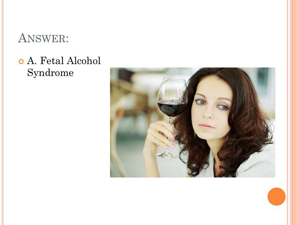 A NSWER : A. Fetal Alcohol Syndrome