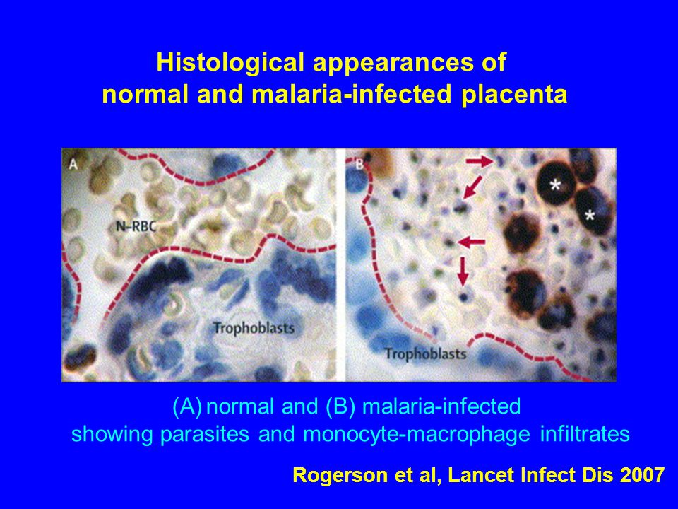 Histological appearances of normal and malaria-infected placenta (A)normal and (B) malaria-infected showing parasites and monocyte-macrophage infiltrates Rogerson et al, Lancet Infect Dis 2007