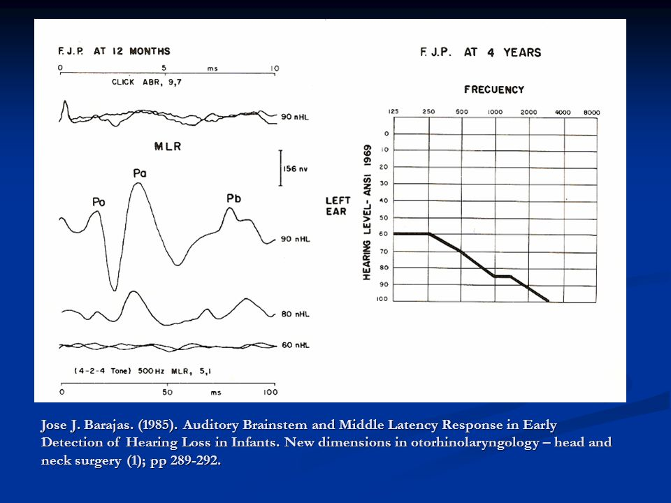 ASSR THRESHOLD CHANGES IN INFANCY Rance, G.& Tomlin, D.