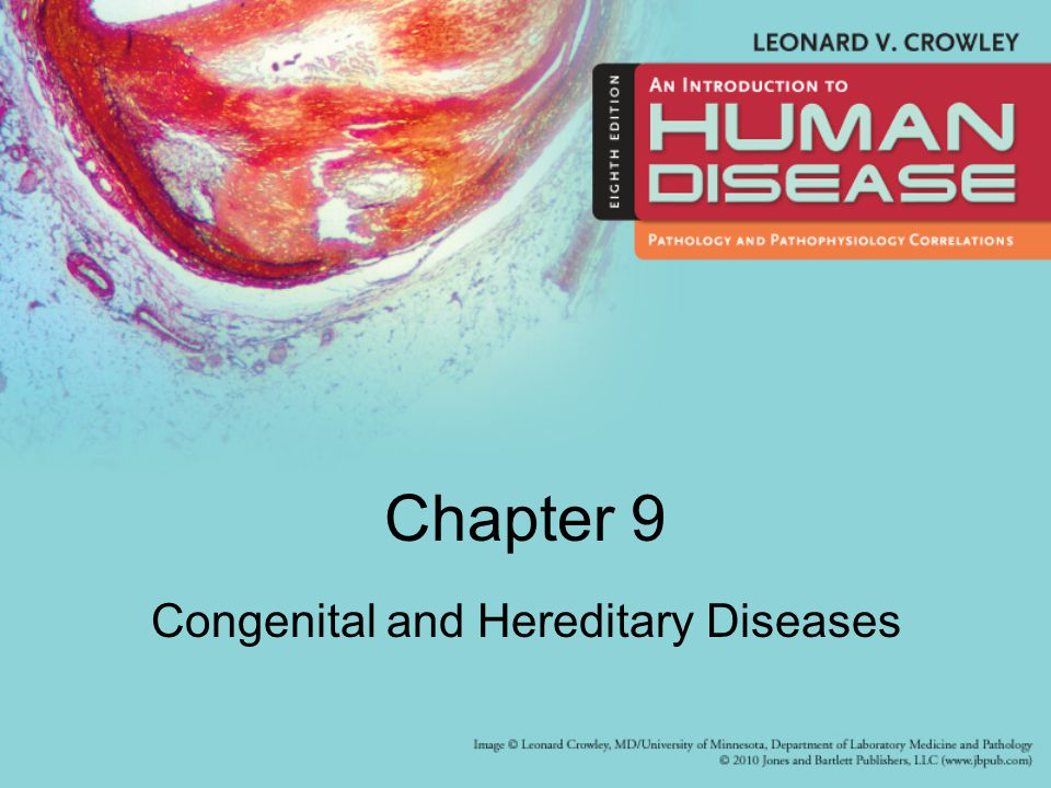 Chapter 9 Congenital and Hereditary Diseases