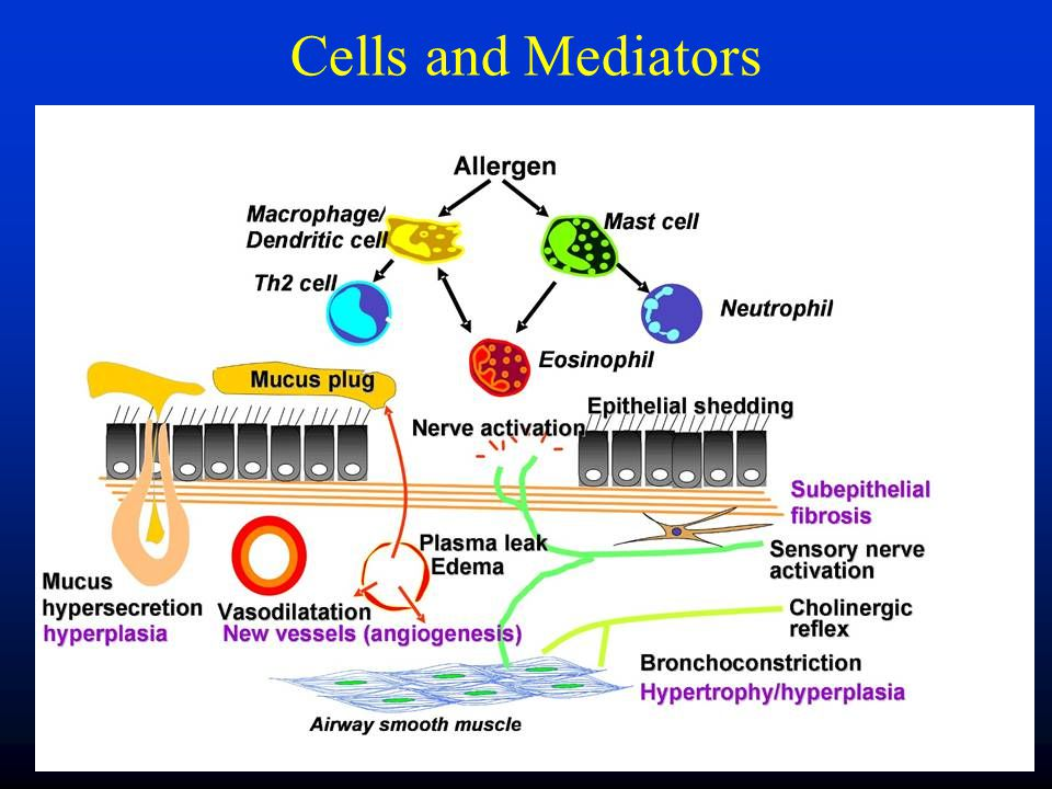 Mast cell Eosinophil IgEPrecipitin Mediators of inflammation + Contraction of airway smooth muscle Oedema Mucus Stimulation of nerves Damage to epithelium Inflammation (Pathophysiology)