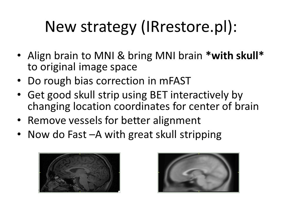New strategy (IRrestore.pl): Align brain to MNI & bring MNI brain *with skull* to original image space Do rough bias correction in mFAST Get good skul
