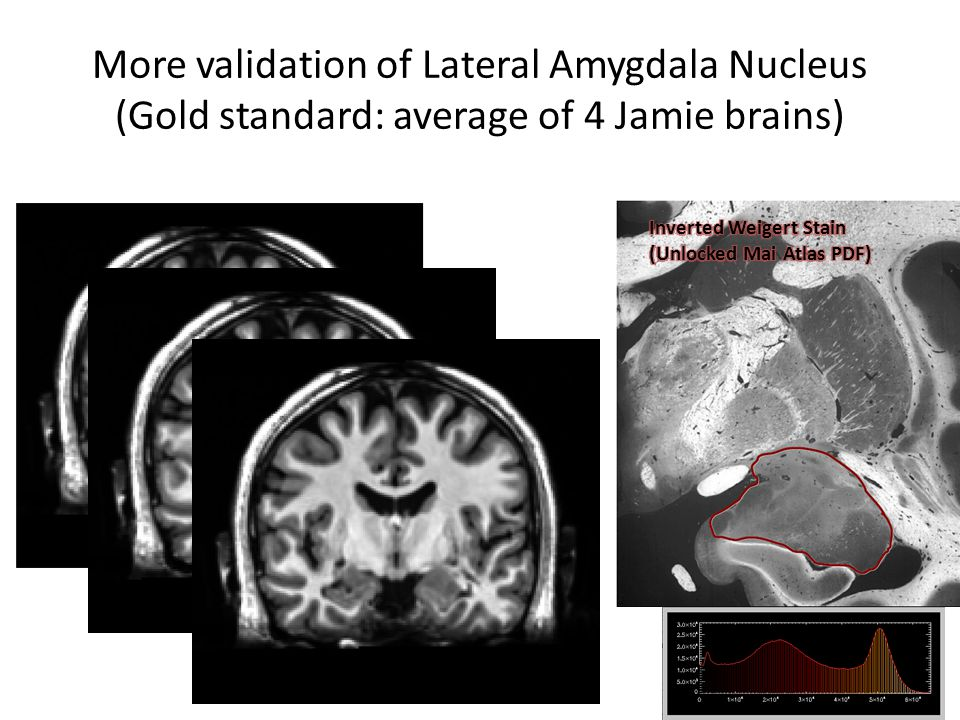 More validation of Lateral Amygdala Nucleus (Gold standard: average of 4 Jamie brains)