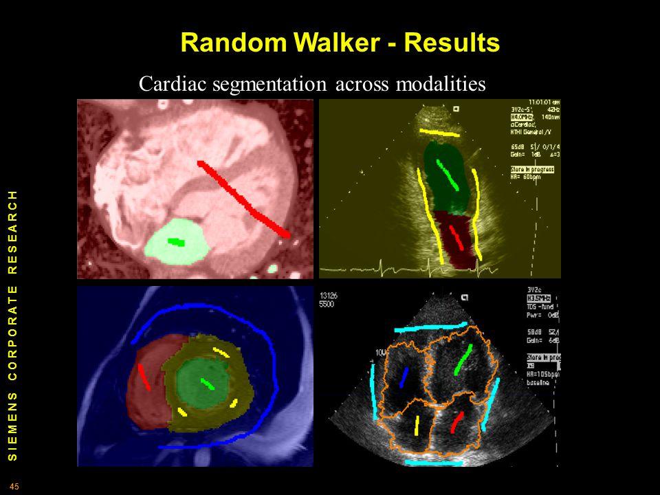 S I E M E N S C O R P O R A T E R E S E A R C H 45 Cardiac segmentation across modalities Random Walker - Results