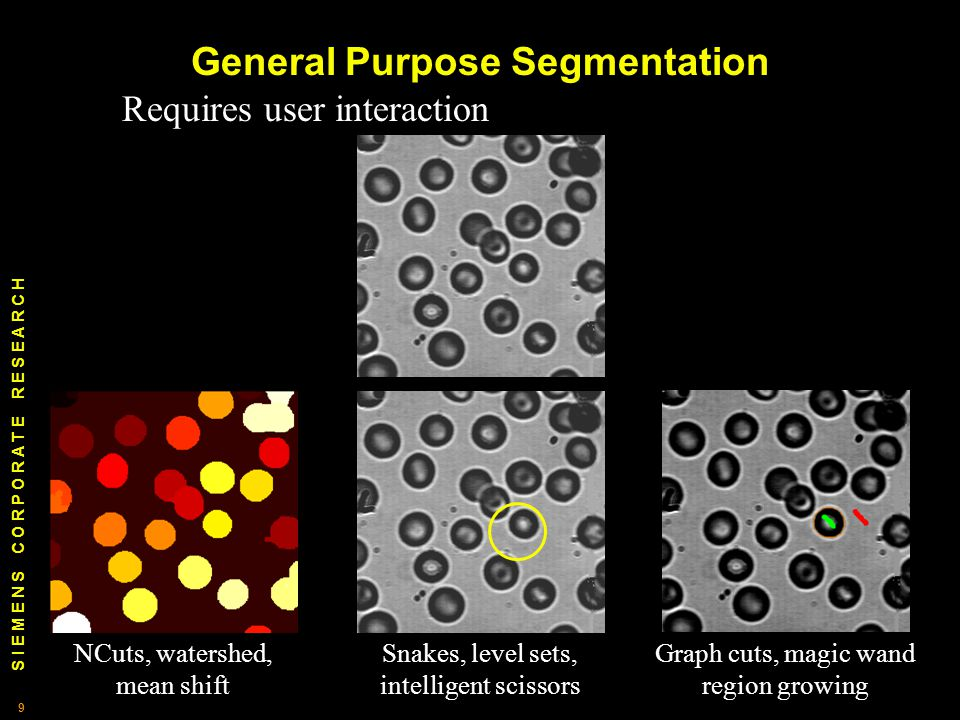 S I E M E N S C O R P O R A T E R E S E A R C H 9 9 General Purpose Segmentation Requires user interaction NCuts, watershed, mean shift Snakes, level sets, intelligent scissors Graph cuts, magic wand region growing