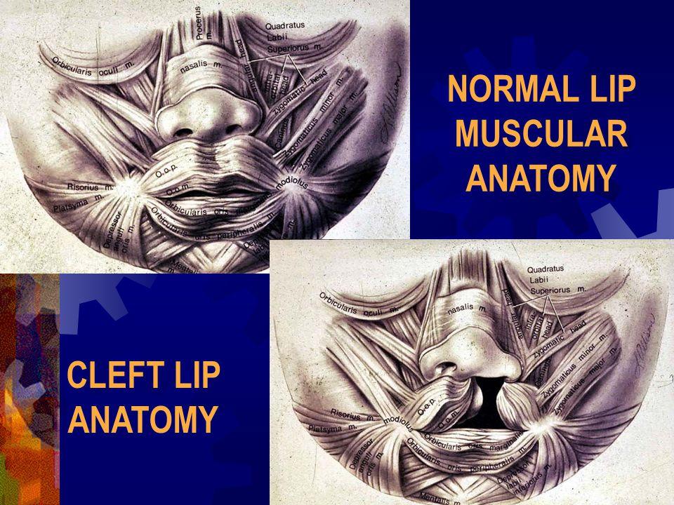 NORMAL LIP MUSCULAR ANATOMY CLEFT LIP ANATOMY