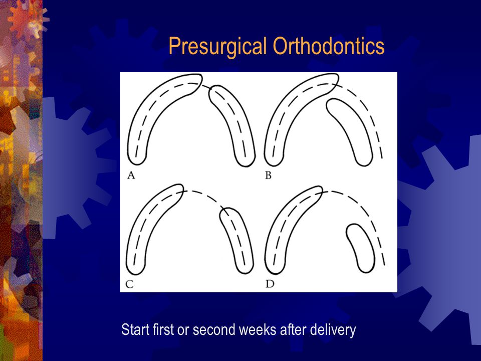 Presurgical Orthodontics Start first or second weeks after delivery