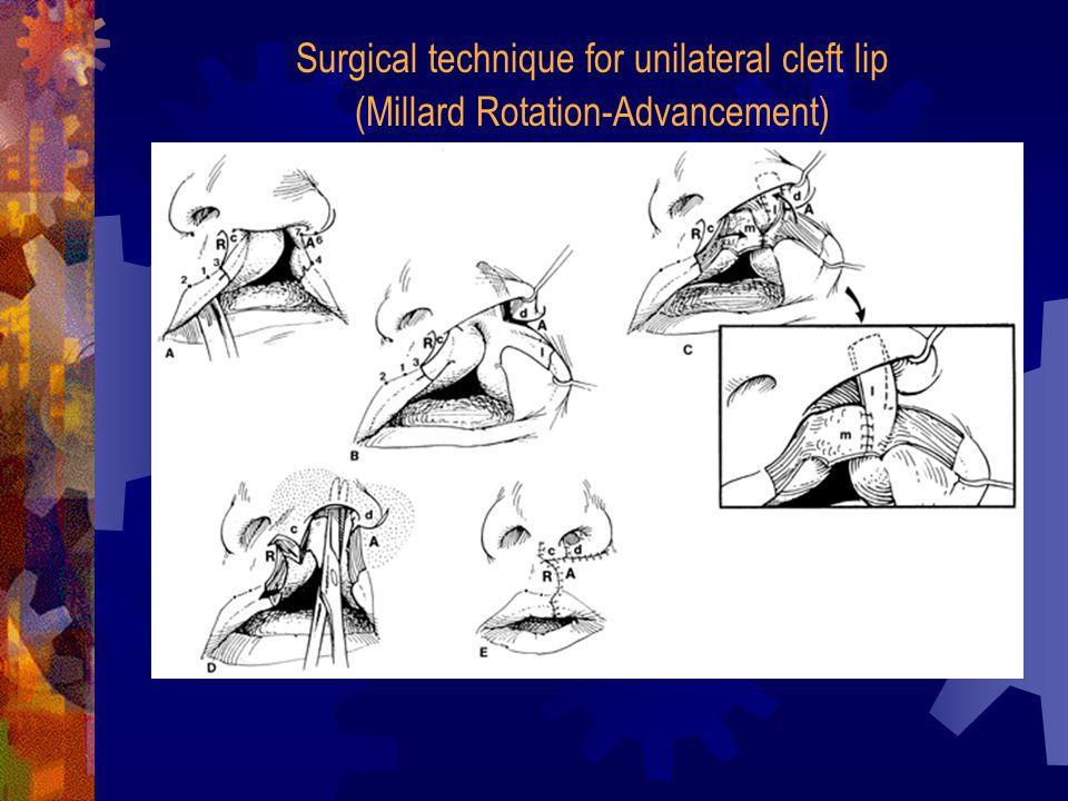 Surgical technique for unilateral cleft lip (Millard Rotation-Advancement)