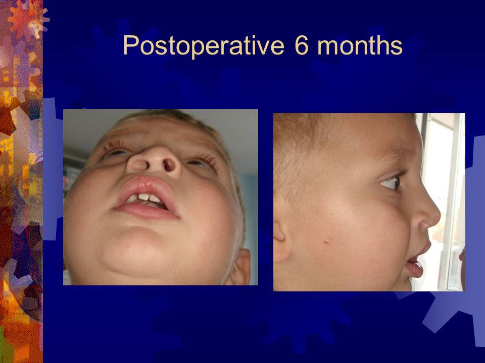 Postoperative 6 months