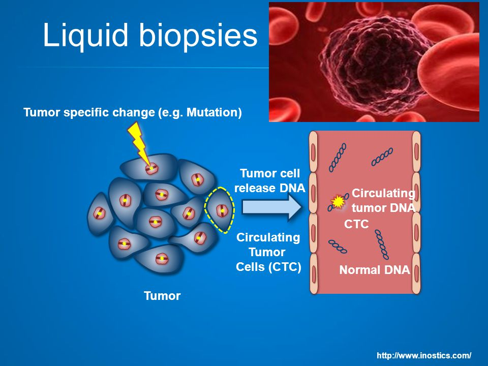 Liquid biopsies Circulating Tumor Cells (CTC) http://www.inostics.com/ Tumor specific change (e.g.
