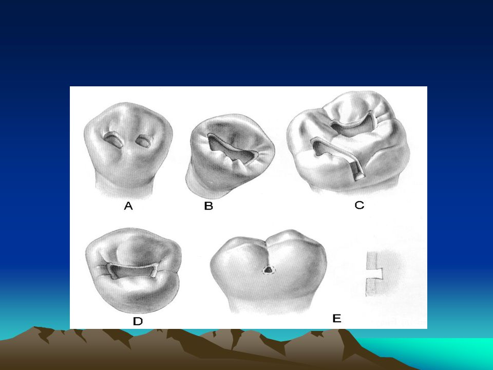 4. When the remaining oblique ridge in upper molars or transverse ridge in lower premolars is weak (Fig. 4-4, A and B), it is a must to be included in