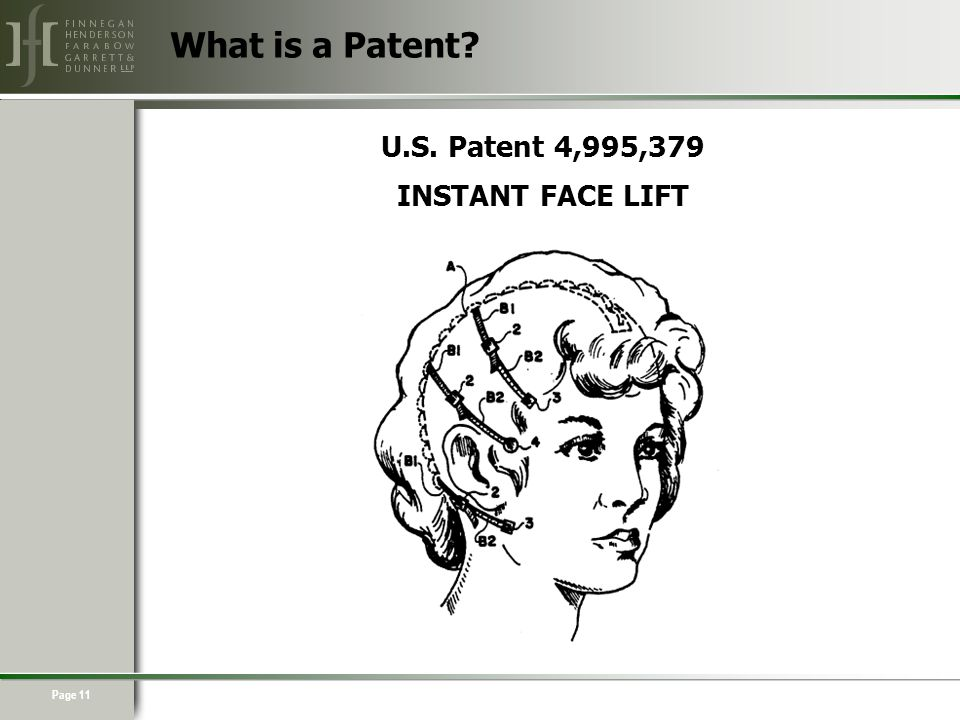 Page 11 U.S. Patent 4,995,379 INSTANT FACE LIFT What is a Patent