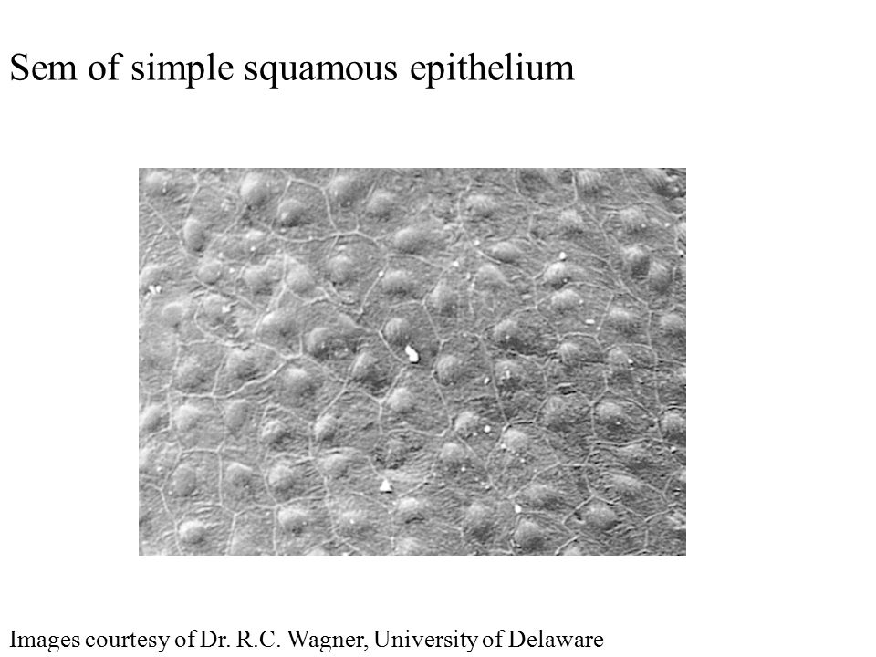 Sem of simple squamous epithelium Images courtesy of Dr. R.C. Wagner, University of Delaware