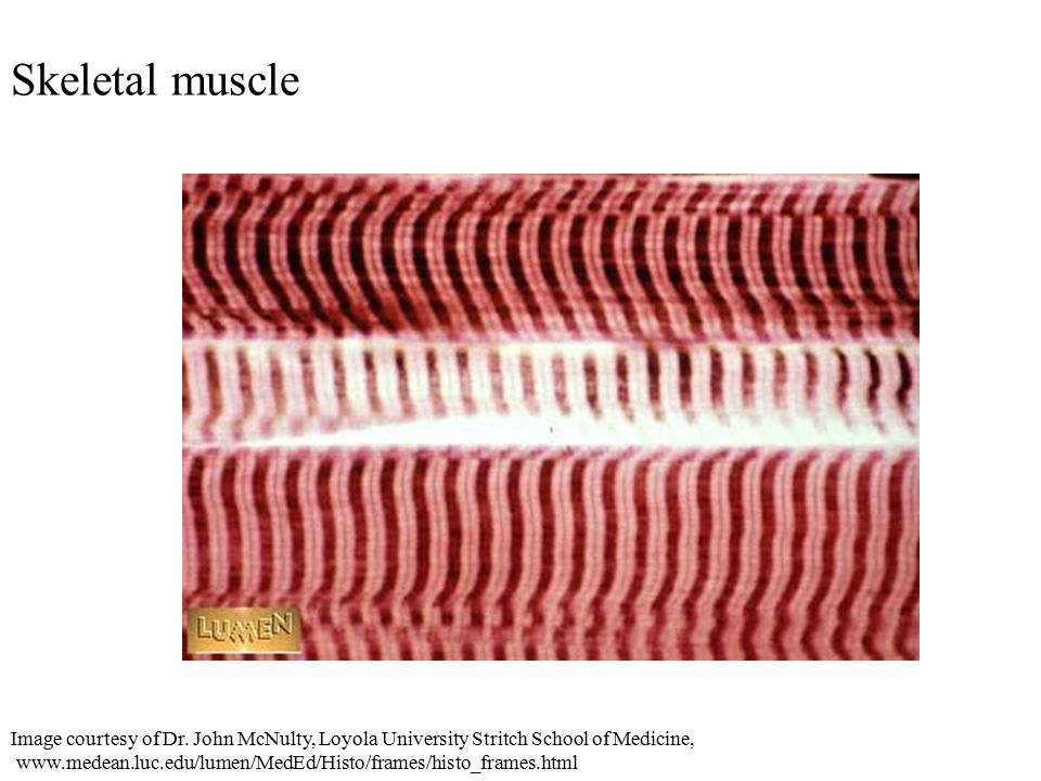 Skeletal muscle Image courtesy of Dr.