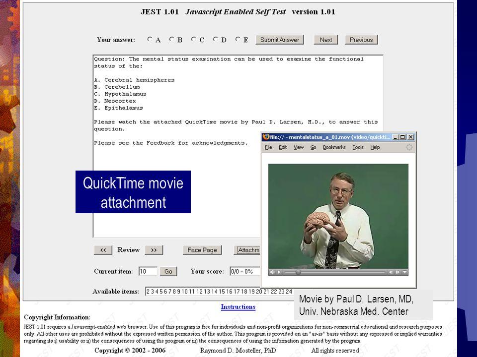 QuickTime movie attachment Movie by Paul D. Larsen, MD, Univ. Nebraska Med. Center