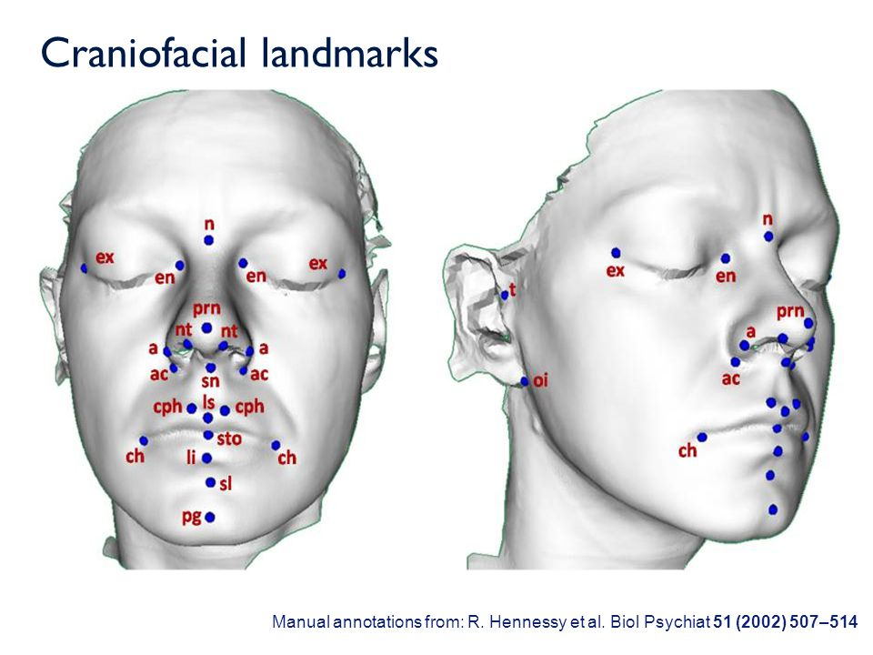 The Face3D project The project is funded by the Wellcome Trust The partners in the project are: The University of Glasgow Royal College of Surgeons in Ireland Dublin City University Institute of Technology, Tralee University of Limerick THANK YOU FOR YOUR ATTENTION
