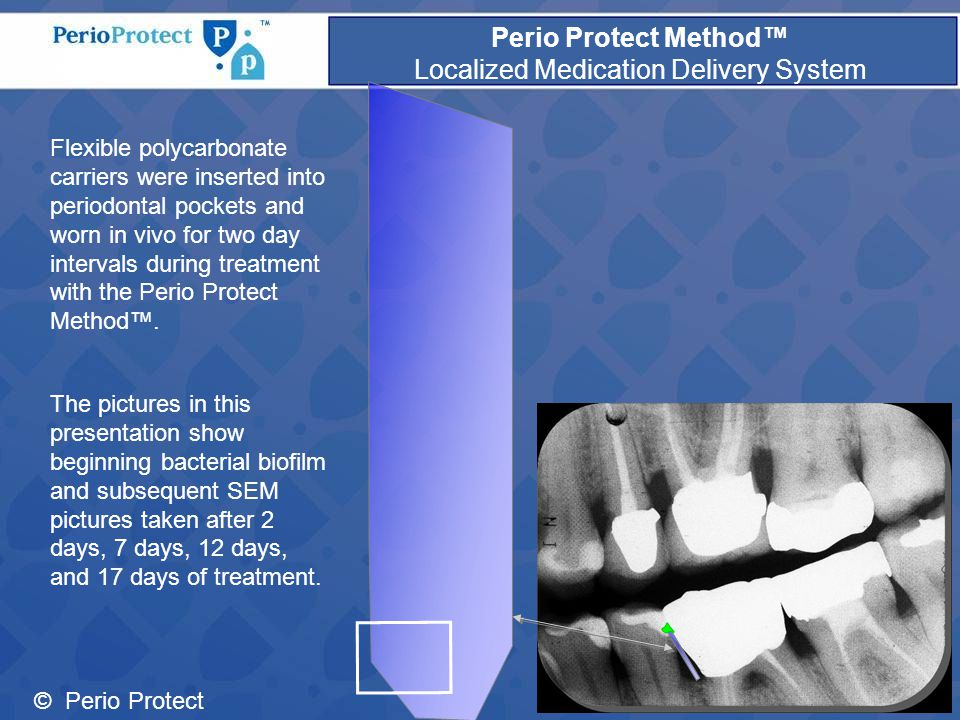 © Perio Protect Perio Protect Method™ Localized Medication Delivery System Flexible polycarbonate carriers were inserted into periodontal pockets and worn in vivo for two day intervals during treatment with the Perio Protect Method™.