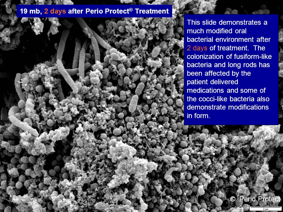 © Perio Protect 19 mb 7 days after Perio Protect ® Treatment