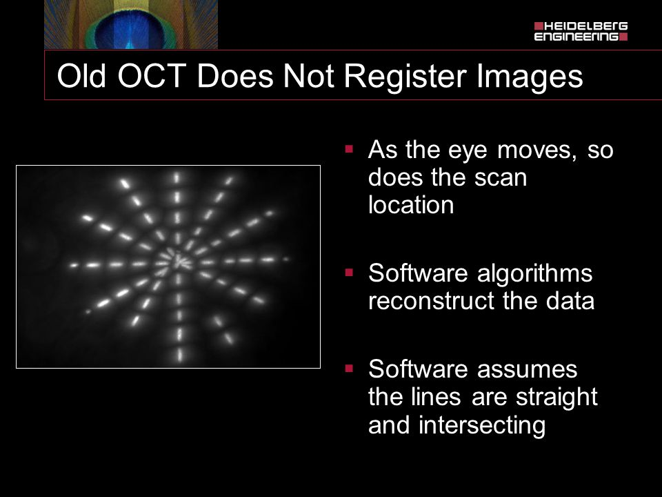 Old OCT Does Not Register Images  As the eye moves, so does the scan location  Software algorithms reconstruct the data  Software assumes the lines